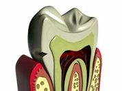 3d caries test.flv