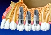 Bridge 3 dents sur 2 implant dentaires