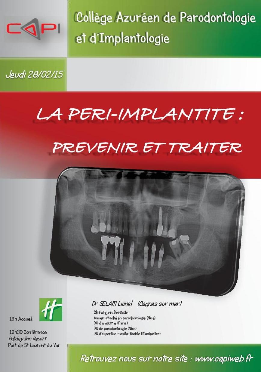 """""""La péri implantite, prévenir et traiter"""""""