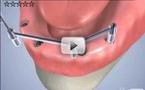 Prothèse implanto-portée mandibulaire sur barre d'attachement.