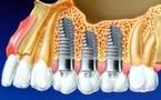 La prothèse sur implant.