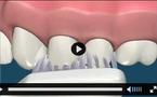Hygiène bucco-dentaire.