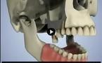 Extraction dentaire et perte de volume osseux au maxillaire.