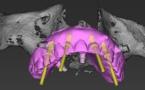 Les progrès de l'informatique nous permettent de simuler la pose d'implants dentaires à l'aide de logiciels sophistiqués.
