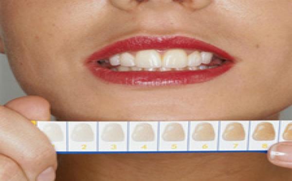 Eclaircissement dentaire.
